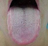 langue blanche