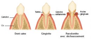 gingivite et mauvaise haleine comment y remedier